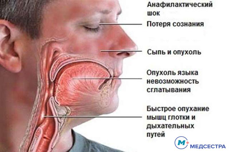 Екстрена допомога при анафілактичному шоці