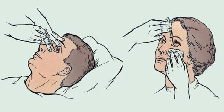Як правильно закапувати краплі у вуха, ніс, очі?